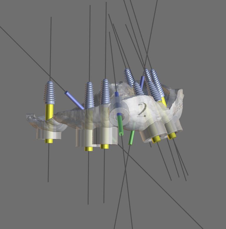 Система установки имплантов по шаблону
